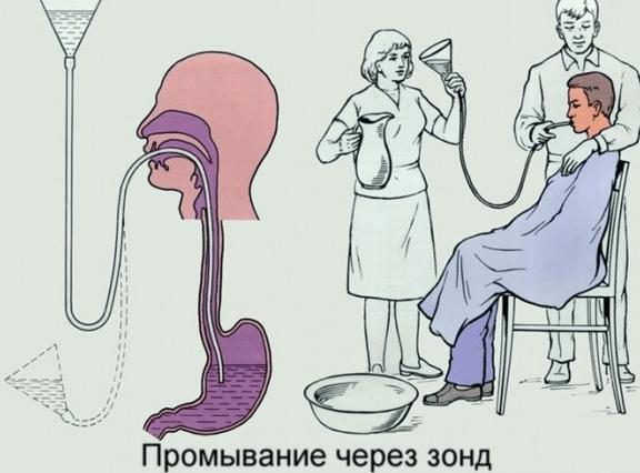 отравление сосиской лечение