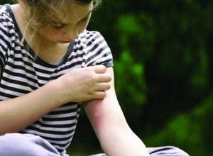 средство от укуса комаров