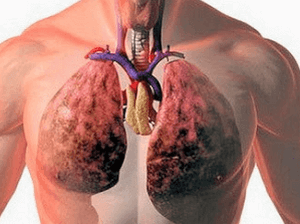 профилактика при отравлении серной кислотой