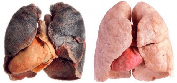 этапы отказа от курения по дням