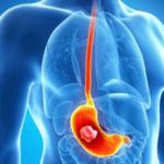 Рвота кислотой и желчью (отравление алкоголем и пищей) - причины и методы лечения