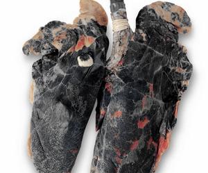 очищение организма после отказа от курения
