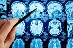 лечение интоксикации головного мозга