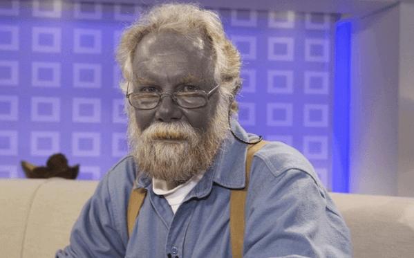 лечение при отравлении серебром