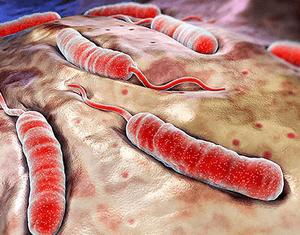 Симптомы эндогенной интоксикации