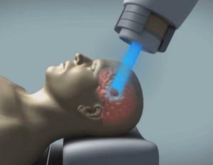 Рентгенотерапия