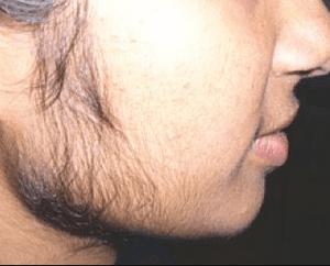 Влияние стероидов на женщин