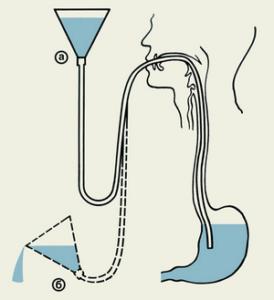 Промывание желудка в больнице