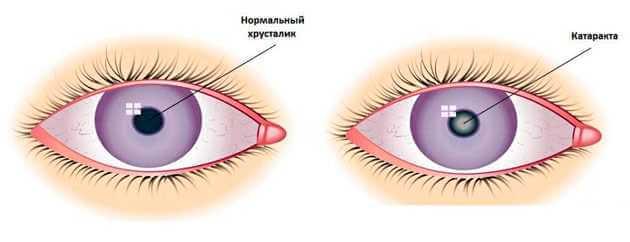 Осложнения после удаления катаракты — не приговор - у нас уже есть решение!