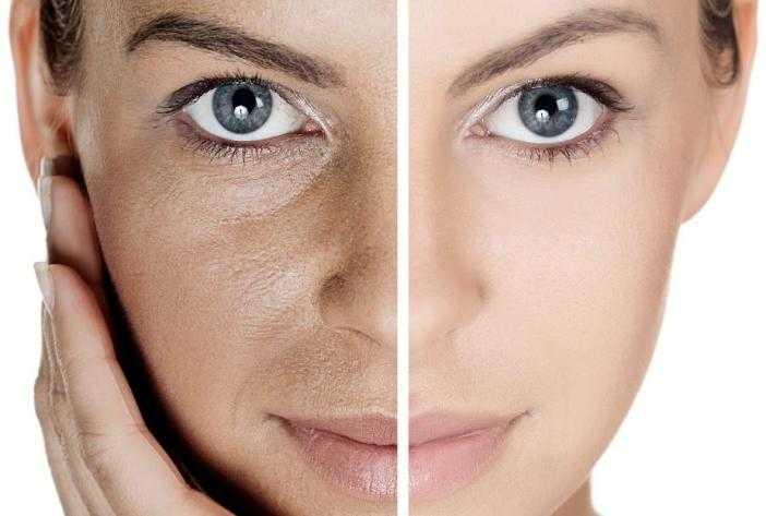 7 способов улучшить цвет лица