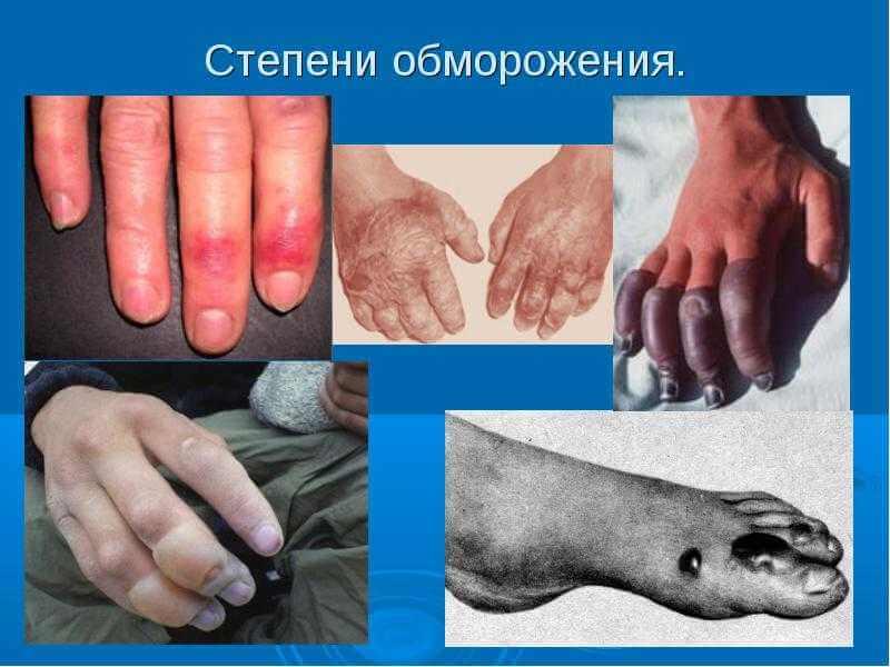 Советы медицинского центра по обморожению