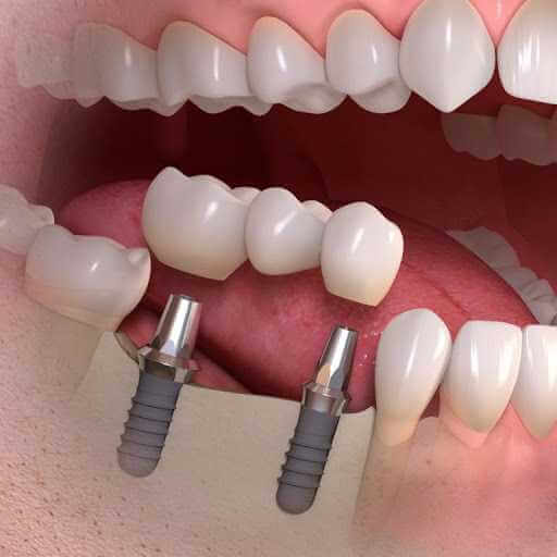 Вернём улыбку, восстановив зубы