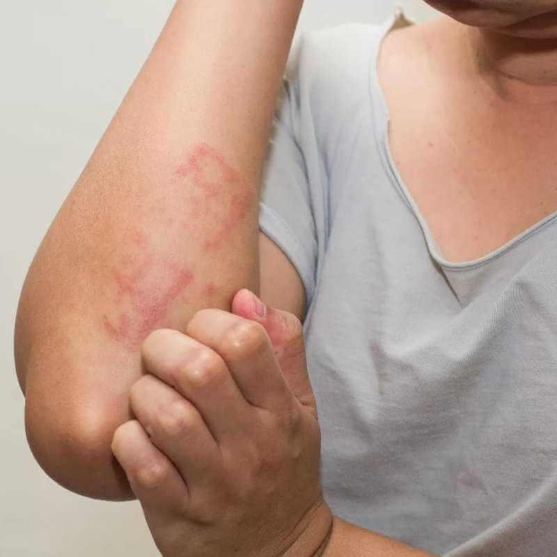 Акродерматит: причины заболевания, основные симптомы, лечение и профилактика
