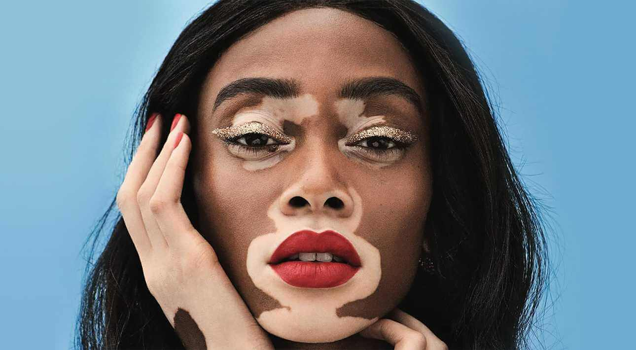 Нарушение окраса кожи – витилиго