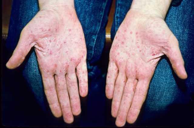 Ладонно-подошвенный псориаз — симптомы и характер заболевания