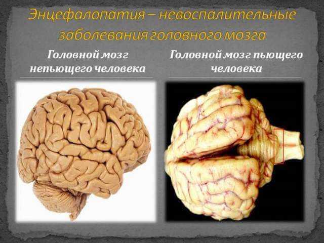 Что такое алкогольная энцефалопатия головного мозга?