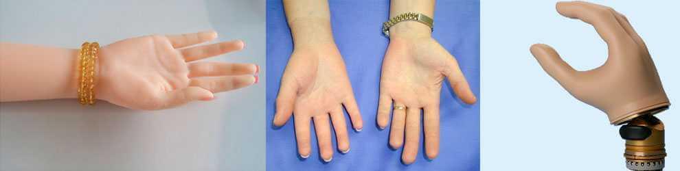 Протезирование кисти руки
