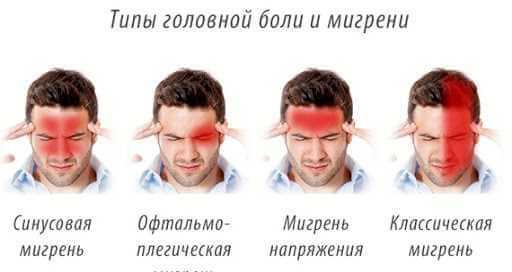 Мигрень и головная боль. Как понять, в чем разница?