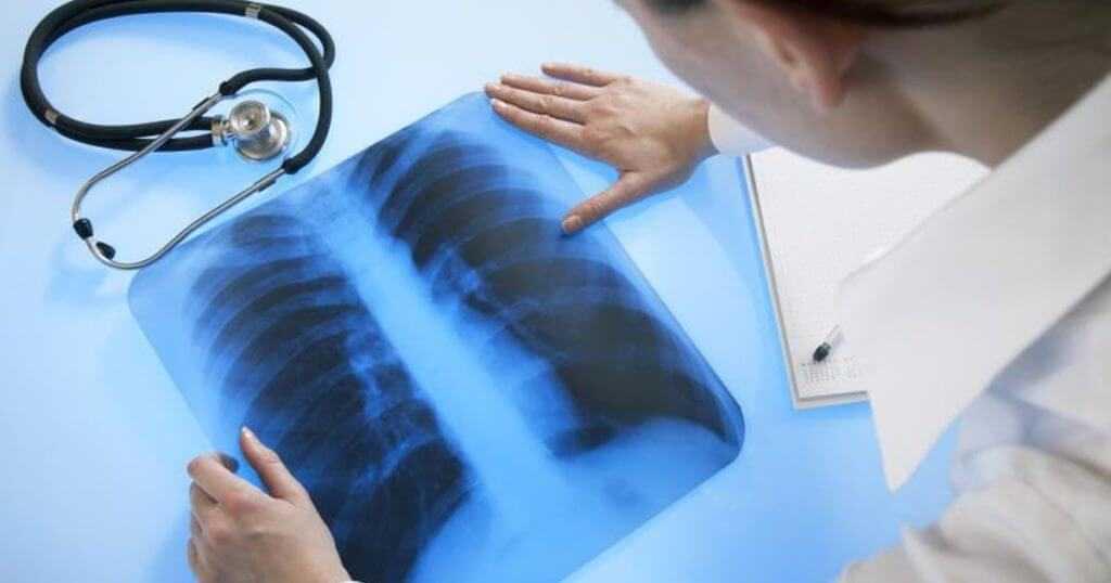 Как вывести радиацию из организма после рентгена, последствия облучения