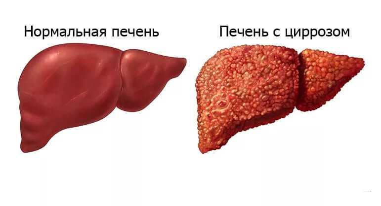 Цирроз печени: что это и как лечить